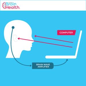 Neurofeedback Concept Loop